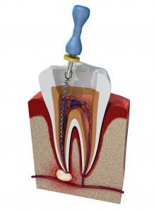 houston root canal infection