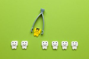 houston tooth extraction
