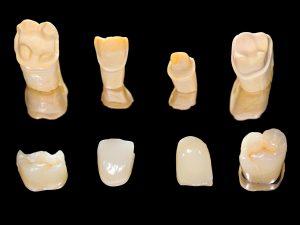 chan dental crowns
