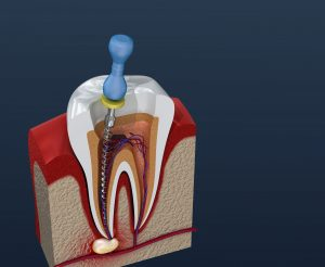 houston root canal