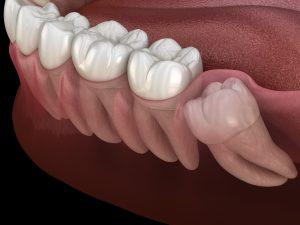 houston oral surgery
