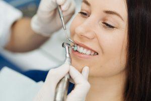 houston dental cleaning